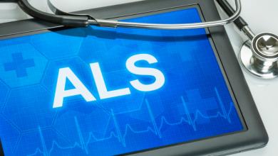 ALS nedir, ALS hastalığı neden olur, nasıl belirti gösterir?