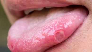 Photo of Dilinizin size sağlığınız hakkında anlatmaya çalıştığı 9 şey! Yanma hissi varsa…