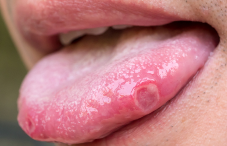 Dilinizin size sağlığınız hakkında anlatmaya çalıştığı 9 şey! Yanma hissi varsa...