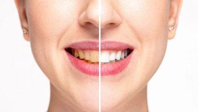 Photo of Diş tartarından kurtulmak için doktora gitmeden önce bu yöntemleri deneyin