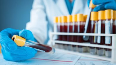 Photo of Kişinin kendi kanı ile tedavi hangi hastalıklarda kullanılır? Uzmanlardan alerji tedavisi uyarısı!