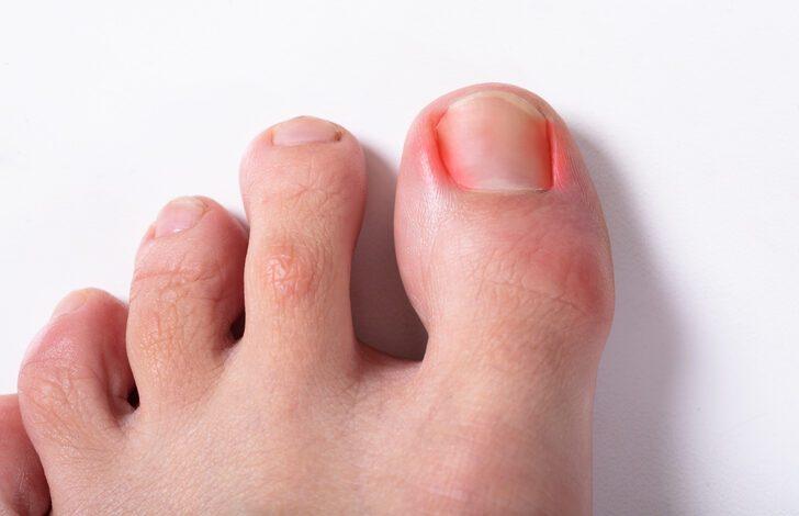 Tırnak batması tedavisi evde yapılabilir mi? İşte tırnak batması tedavisinde kalıcı çözüm