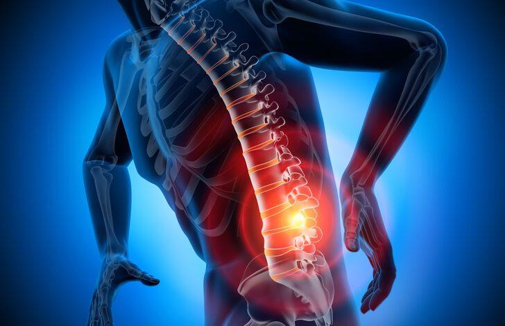 Bel fıtığı neden olur? Bel fıtığı tedavisinde ameliyat hangi durumlarda yapılır?