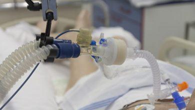 Photo of Koronavirüs felç yapıyor! Uzmanlar uyarıyor: Kan pıhtıları…