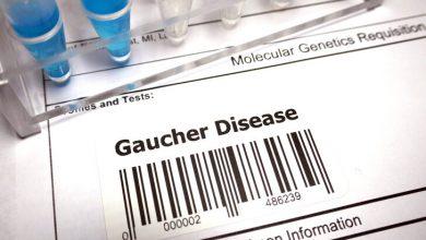 Photo of Doç. Dr. İlyas Okur: Lizozomal depo hastalıkları içerisinde en sık görülen Gaucher