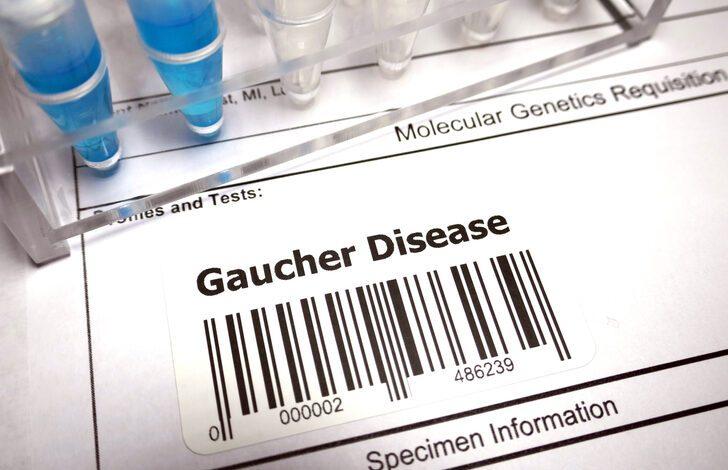 Doç. Dr. İlyas Okur: Lizozomal depo hastalıkları içerisinde en sık görülen Gaucher