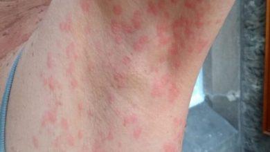 Uzmanlar deri döküntüsünü koronavirüs belirtileri arasına eklenmesi gerektiğini söylüyor