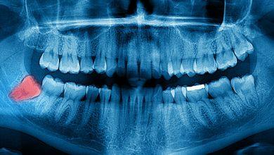 Photo of Gelecek nesiller 20 yaş dişleri olmadan doğabilir