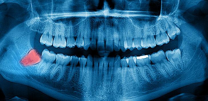 Gelecek nesiller 20 yaş dişleri olmadan doğabilir