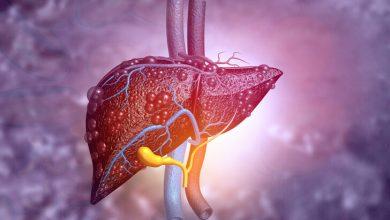 Photo of Karaciğer kanserine neden olan 5 faktör