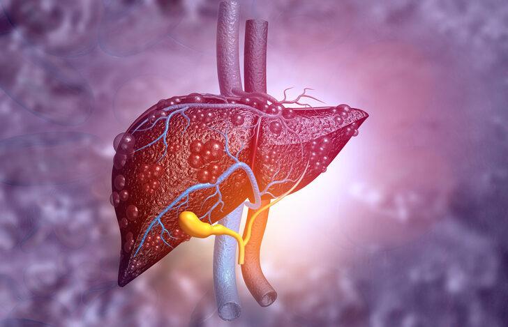 Karaciğer kanserine neden olan 5 faktör