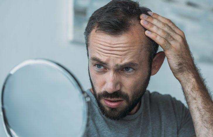 Saç dökülmesi bu alışkanlığınız yüzünden olabilir