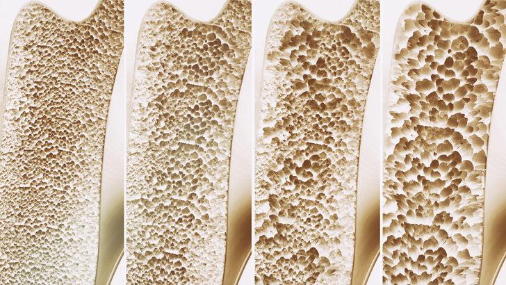 Osteopoz uyarısı: Bu önlemler alınmazsa...