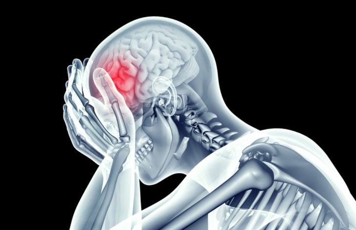 Beyin kanaması nasıl anlaşılır, belirtileri neler?