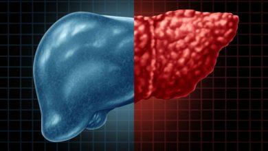 Photo of Karaciğer enzimleri neden yükselir? Karaciğer yağlanması nedir?
