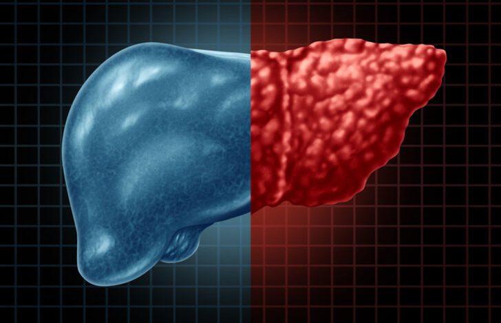 Karaciğer enzimleri neden yükselir? Karaciğer yağlanması nedir?
