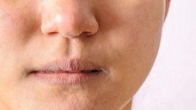 Photo of Maske alerjisi belirtileri nelerdir? Önlemek mümkün mü?