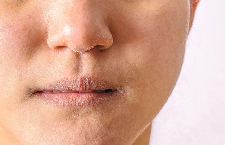 Maske alerjisi belirtileri nelerdir? Önlemek mümkün mü?