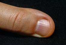 Photo of Tırnak diplerinizdeki beyazlıklara dikkatli bakın! Baş parmağımızdaki beyazlık…