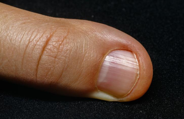 Tırnak diplerinizdeki beyazlıklara dikkatli bakın! Baş parmağımızdaki beyazlık...