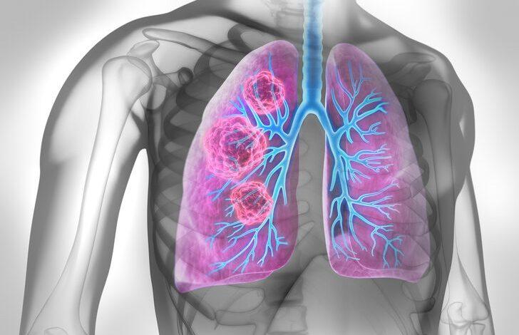 Akciğer kanseri belirtileri böyle başlıyor!